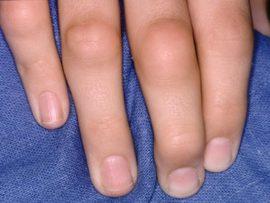 Изменяются суставы при ревматоидном артрите