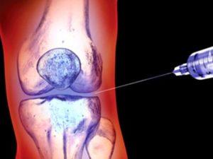 Лечение гиалуроновой кислотой при лечении артроза коленного сустава