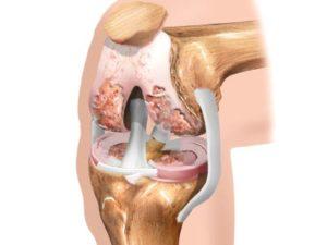 Первичный артроз коленного сустава обычно диагностируют практически здоровых пациентов