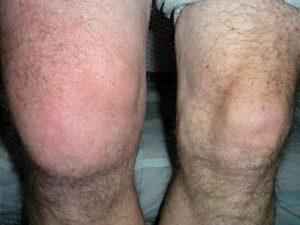 При артрозе коленного сустава опухают и отекают колени