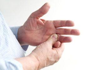 Признаки артрита проявляются на начальных стадиях