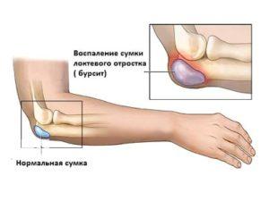 Риски при бурсите локтевого сустава