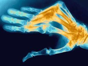 Российские ученные проводят множество исследования для изучения ревматоидного артрита