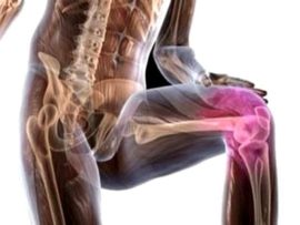 Советы о том что такое артроз коленного сустава