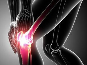 Советы по лечению артроза коленного сустава