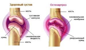 Схема воспаленного сустава