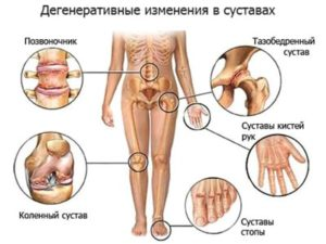 Где могут возникнуть изменения в суставах при деформирующем остеоартрозе