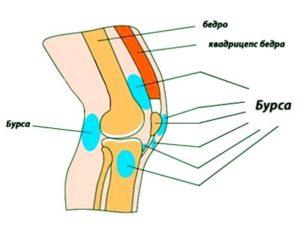 Места появления бурсита коленного сустава