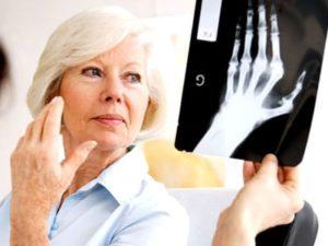 При ревматоидном артрите кодификация мкб 10 необходима только для врачей, не многие больные в ней разберутся