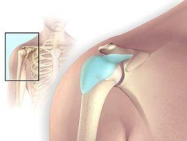 Причины появления бурсита плечевого сустава