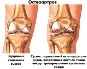 Симптоматические проявления остеоартроза коленного сустава