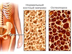 Какие бывают развитие и причины остеопороза