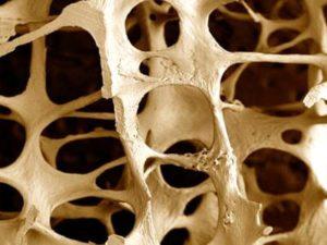 Советы о том как избежать факторов риска при остеопорозе