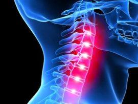 Что из себя представляет остеохондроз шейного отдела позвоночника