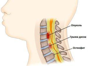 Что представляет из себя миелопатия при остеохондрозе поясничного отдела