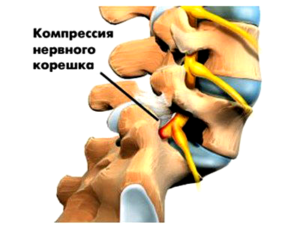 Рисунок показывает развитие корешкового синдрома при остеохондрозе поясничного отдела