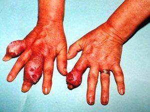 Какие бывает симптомы при подагре