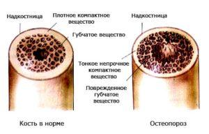 Развитие и причины остеопороза