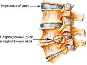 Рисунок показывает повреждения диска при остеохондрозе поясничного отдела позвоночника