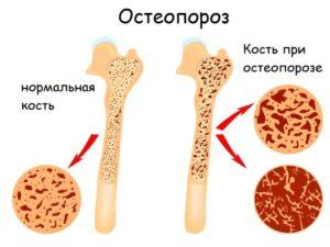 Как происходит разрушение костной ткани при остеопорозе