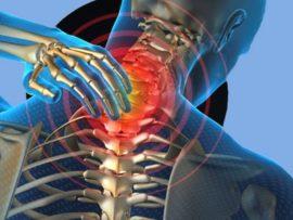 Советы по лечению остеохондроза шейного отдела позвоночника