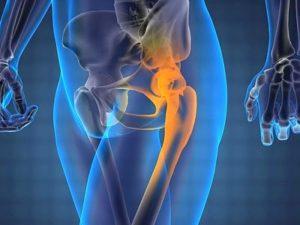 Советы по симптомам и лечению бурсита тазобедренного сустава