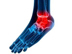 Какие бывают степени остеоартроза голеностопного сустава