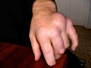 Как может развиваться и выглядеть подагра на руках