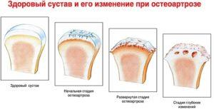 Изменение костного сустава при коленном деформирующем остеоартрозе
