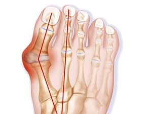 Советы по лечению бурсита большого пальца стопы