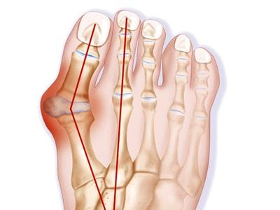 остеоартроз большого пальца ноги
