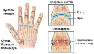 Как развивается остеоартроз кистей рук