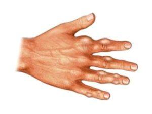 Рисунок показывает отложение кристаллов мочевой кислоты в мягких тканях