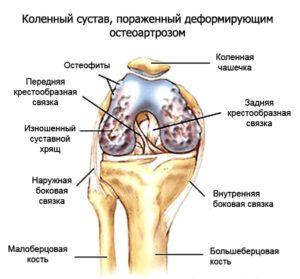 Какое бывает развитие болезни при коленном деформирующем остеоартрозе