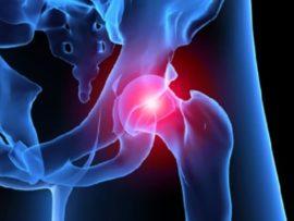 Какие бывают признаки артроза тазобедренного сустава