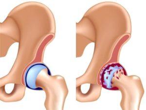 Бывает две формы артроза тазобедренного сустава