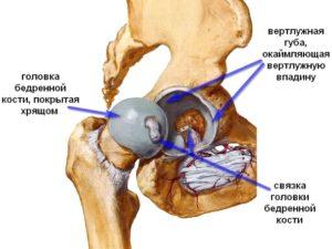 Артроз бедренного сустава это многофакторная болезнь