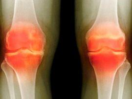 При артрите коленного сустава возникают воспаления для этого нужно использовать разные мази