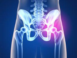 Советы о том как лечить артроз тазобедренного сустава
