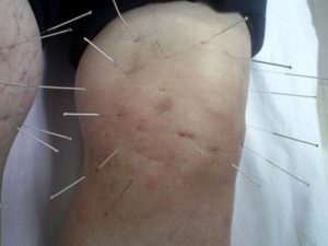 Советы по иглоукалыванию при коленном деформирующем остеоартрозе