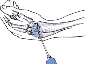 Как делать инъекции гиалуроновой кислоты при остеоартрозы кистей рук