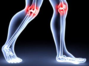 Описание классификации остеоартроза МКБ 10