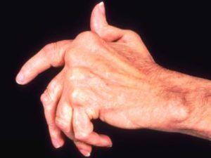 Артрит пальцев рук представляет собой воспалительный процесс в суставах