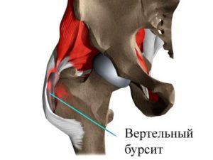 Что может стать причиной начала болезни вертельного бурсита тазобедренного сустава