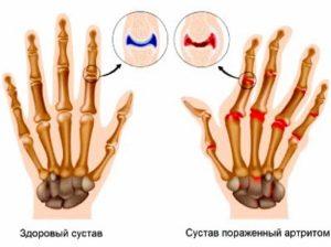 На рисунке показан результат заболевания артрита пальцев рук