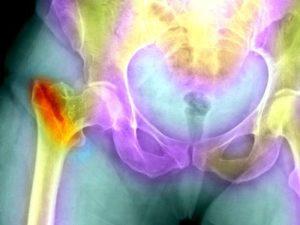 Как лечить вертельного бурсита тазобедренного сустава