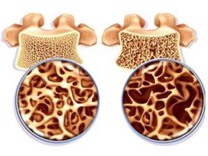 Советы о том как избежать разрушения костной ткани при остеопорозе у женщин