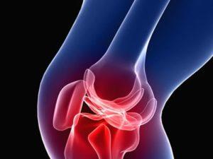 Советы по симптомам и лечению деформирующего артроза