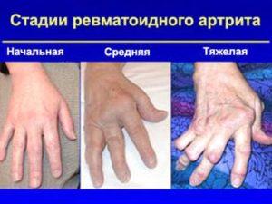 Стадий артрита пальцев рук