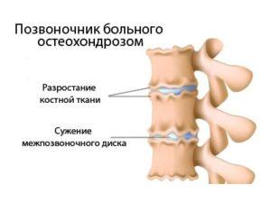 Межпозвонкового остеохондроза есть несколько разновидностей